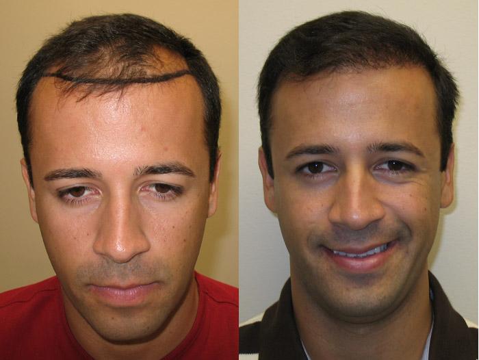 Greffes cheveux Tunisie