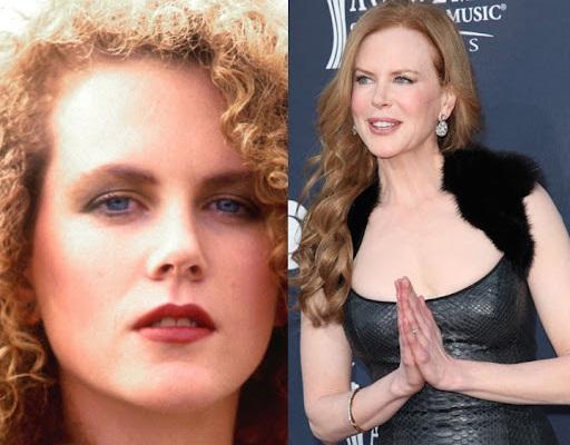 Nicole Kidman chirurgie esthétique